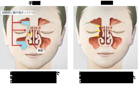 炎 ブログ 鼻腔 副 手術 「手術のため入院」ミラノパイのブログ |